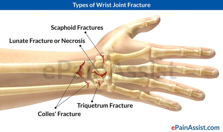 WRIST-JOINT-FRACTURE