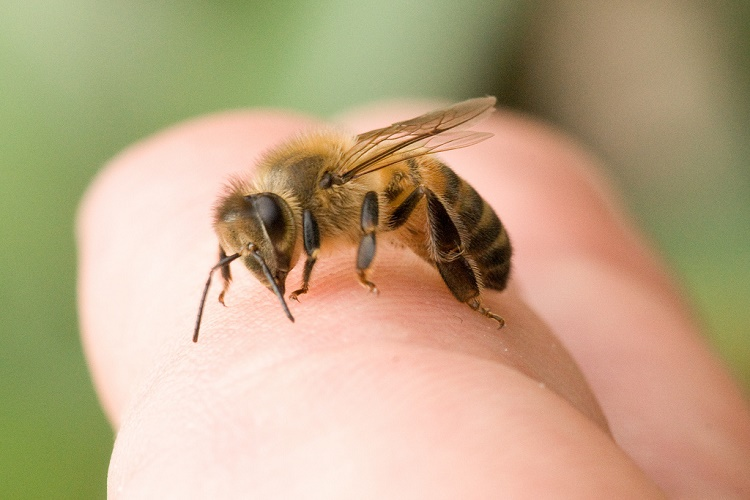 bee-sting-home-remedies